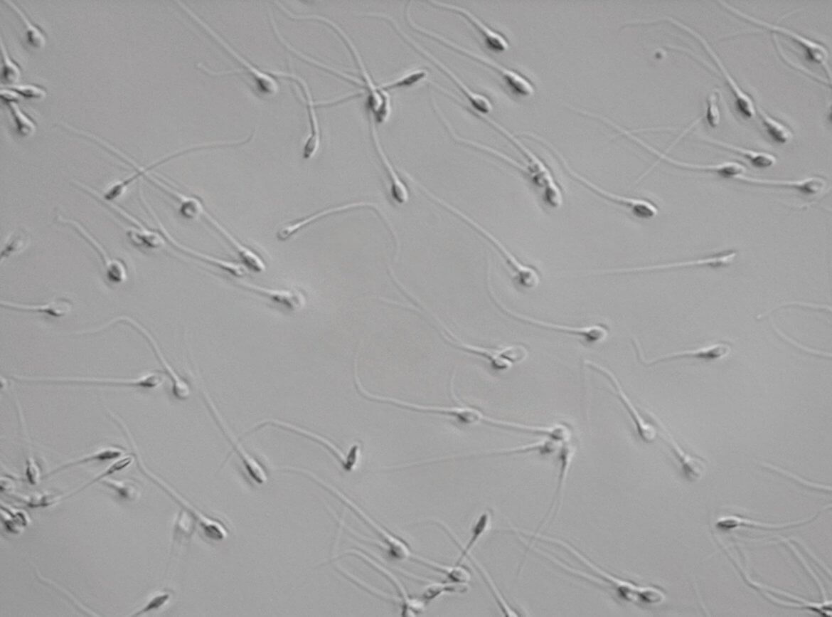 Abnormal Sperm Morphology - Naturehill-3662