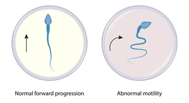 GETTING PREGNANT WITH LOW SPERM MOTILITY